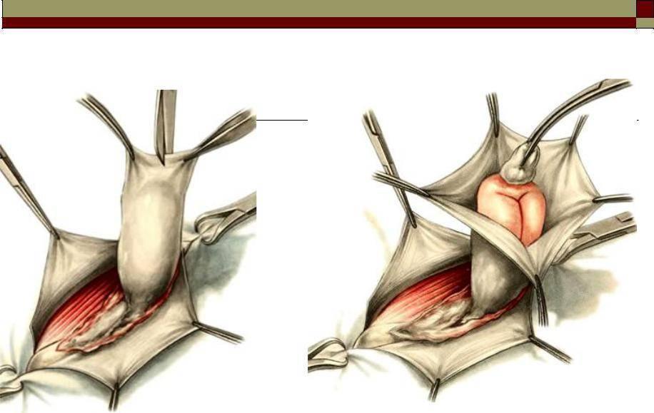 Все о пупочной грыже у грудничка: симптомы и способы лечения