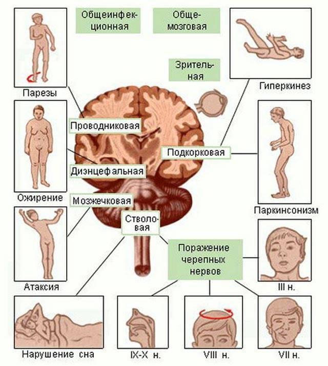 Органическое поражение головного мозга у детей - что это такое, каковы симптомы? | заболевания | vpolozhenii.com