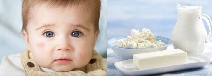Аллергия на кисломолочные продукты у ребенка, как проявляется аллергия на кисломолочные продукты