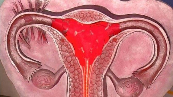 Менструация на фоне приема норколута