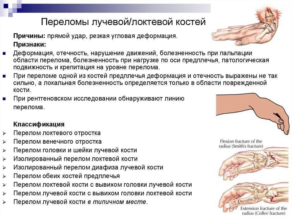 Перелом руки у ребенка со смещением и без: симптомы и лечение, диагностика