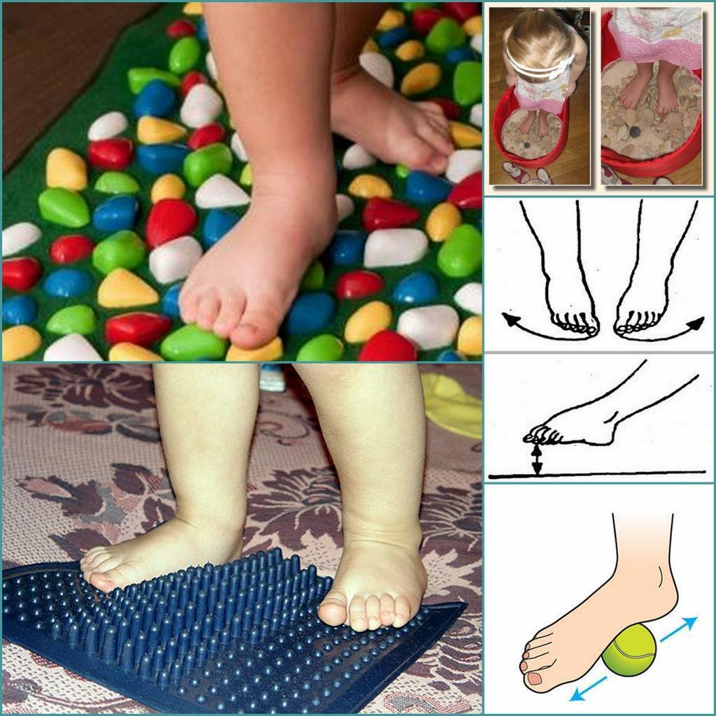 Варусная деформация стопы у ребенка: симптомы, лечение с помощью массажа и лфк, подбор обуви - все о суставах