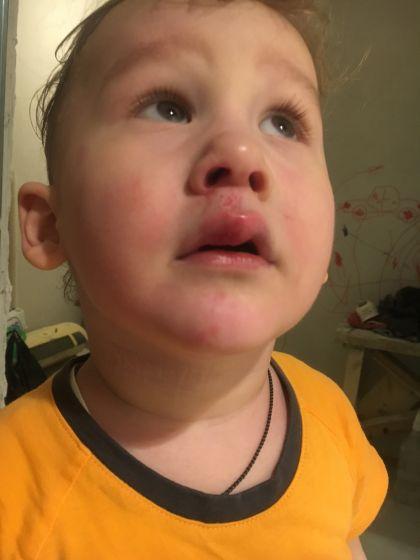 Ребенок ударился губой и она опухла что делать - wikimedhelp.ru