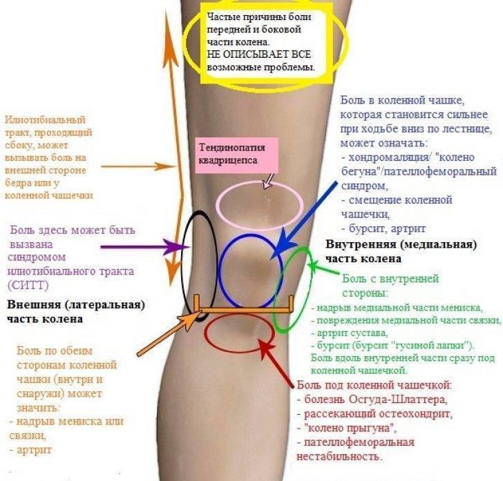Вставании и сгибании и что с этим делать?, колени и пальцы при приседании, почему после родов болят суставы ног и рук - все о суставах