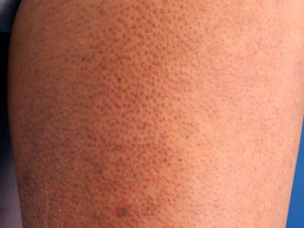 Почему у ребенка сыпь в виде гусиной кожи на лице и теле: причины и лечение - про папилломы