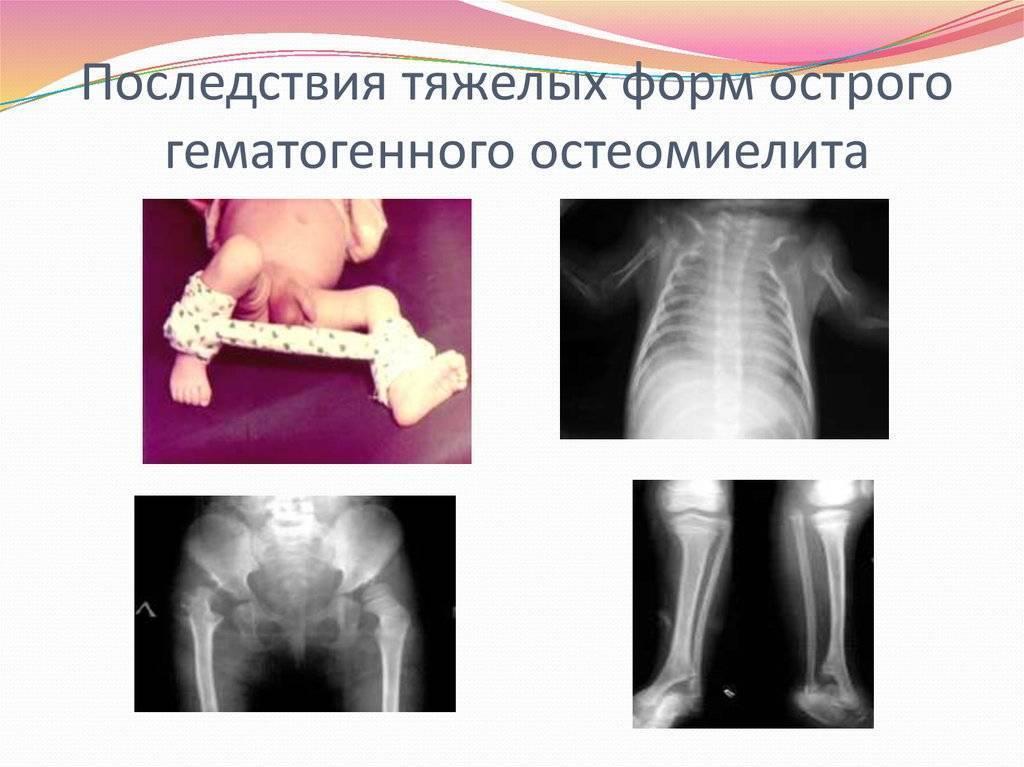 Классификация, проявления и терапия острого гематогенного остеомиелита у детей - нашисуставы