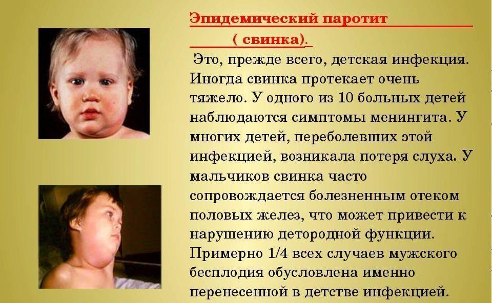 Эпидемический паротит (свинка) у детей: фото, симптомы и лечение, профилактика паротита у детей