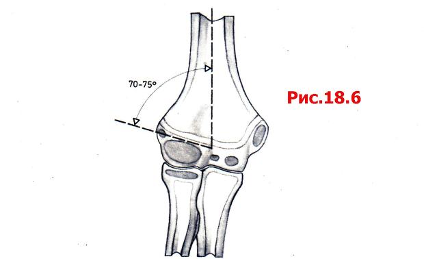 Закрытый чрезмыщелковый перелом левого плеча
