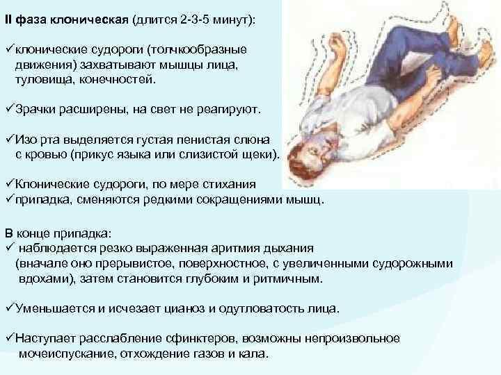 Эпилепсия у детей: причины возникновения, симптомы, признаки и лечение