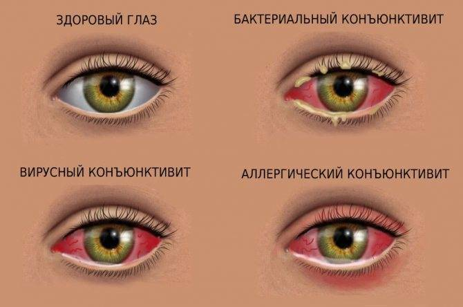 Ангиопатия сетчатки глаза у ребенка: основные симптомы и лечение