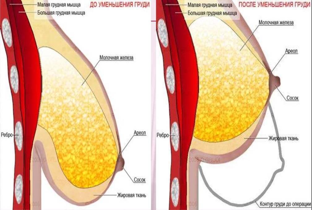 Как восстановить грудь после кормления: подтянуть и вернуть упругость если обвисла