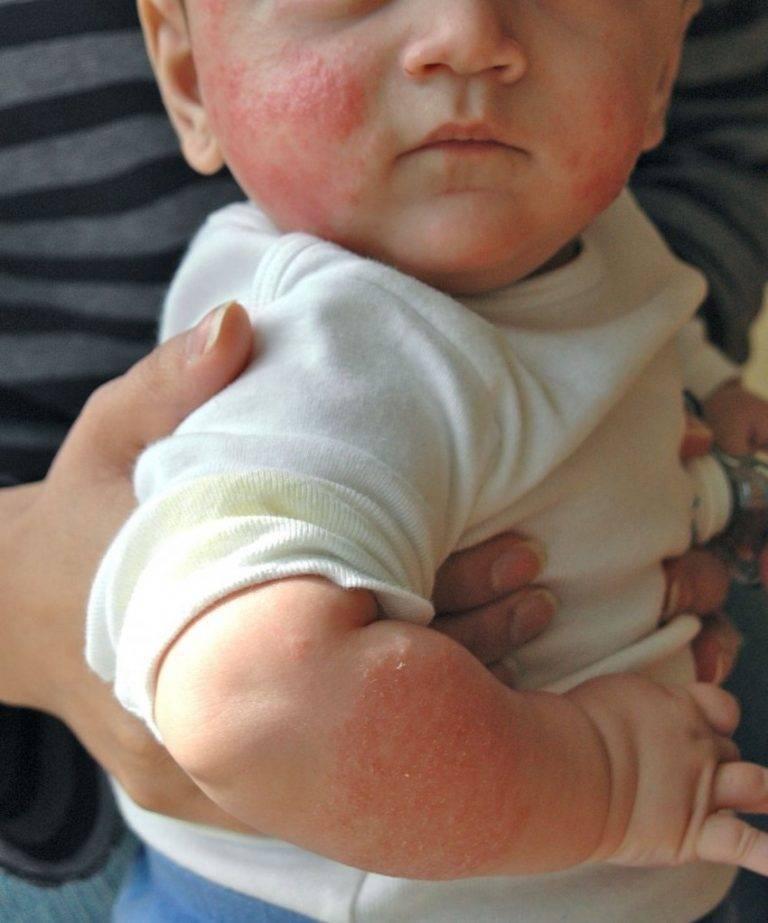 Аллергия у детей – симптомы и лечение: как проявляется пищевая и другие виды, как пройти аллергопробы