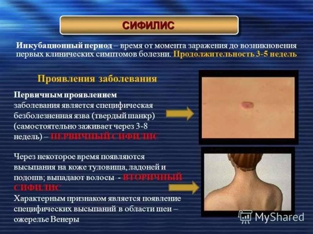 Розовый лишай у ребенка - признаки и симптомы, как лечить пятна на коже, фото