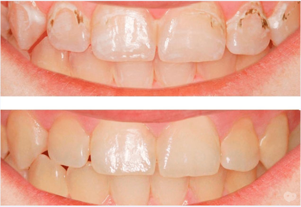Глубокое фторирование зубов - что это такое? цена, отзывы, у детей, препараты