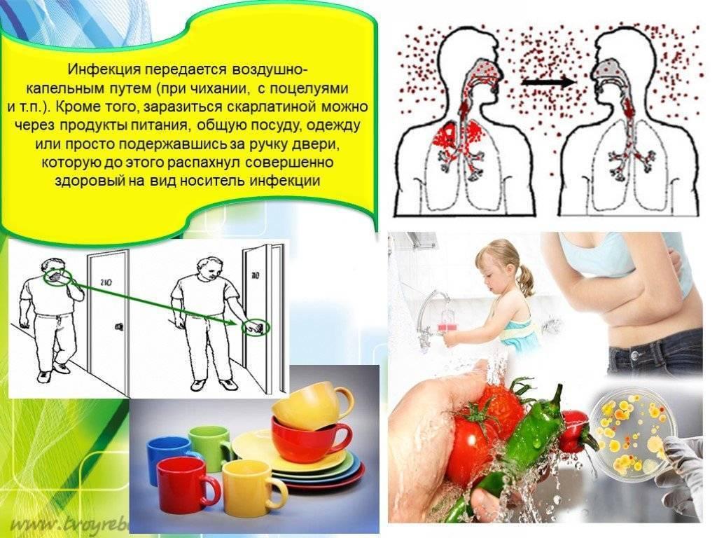 Легочный хламидиоз - пути заражения, симптомы, лечение и диагностика