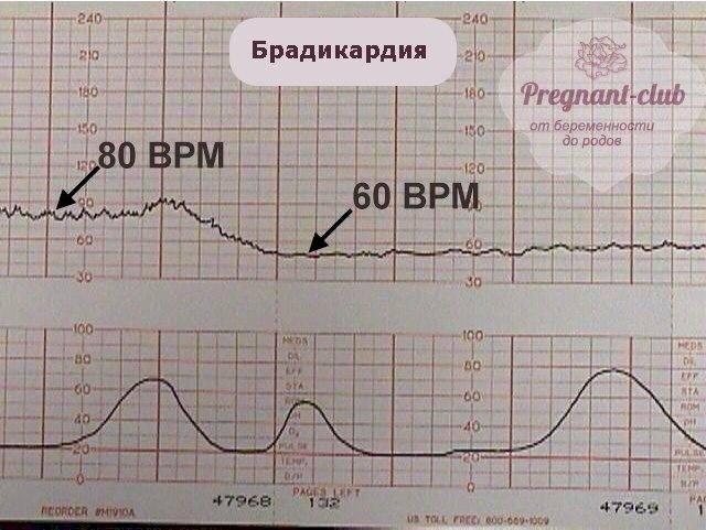 Брадикардия плода при беременности: причины замедления сердца у эмбриона и матери на ранних и поздних сроках, лечение