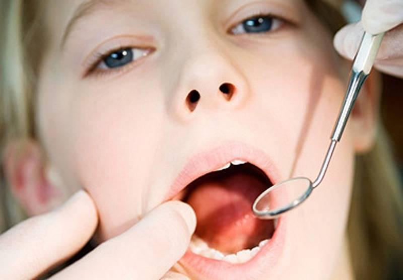Симптомы и лечение стоматита у детей фото