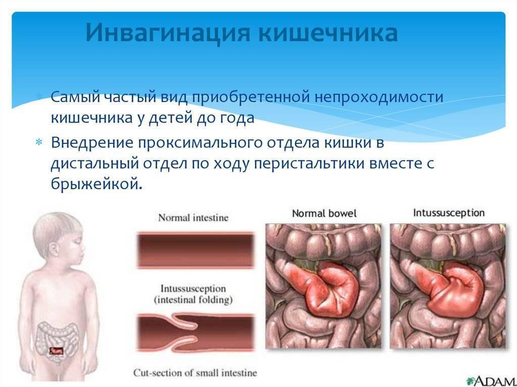 Кишечная непроходимость симптомы у грудничка - помощь доктора