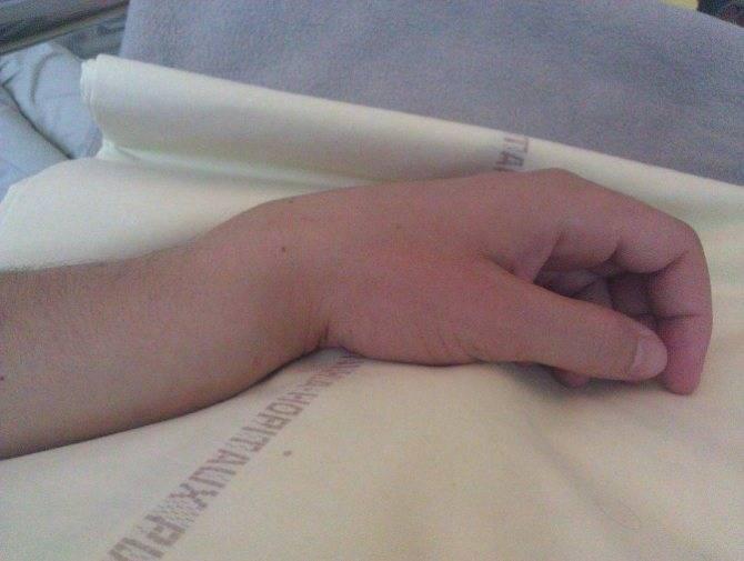Лечение перелома со смещением руки у ребенка