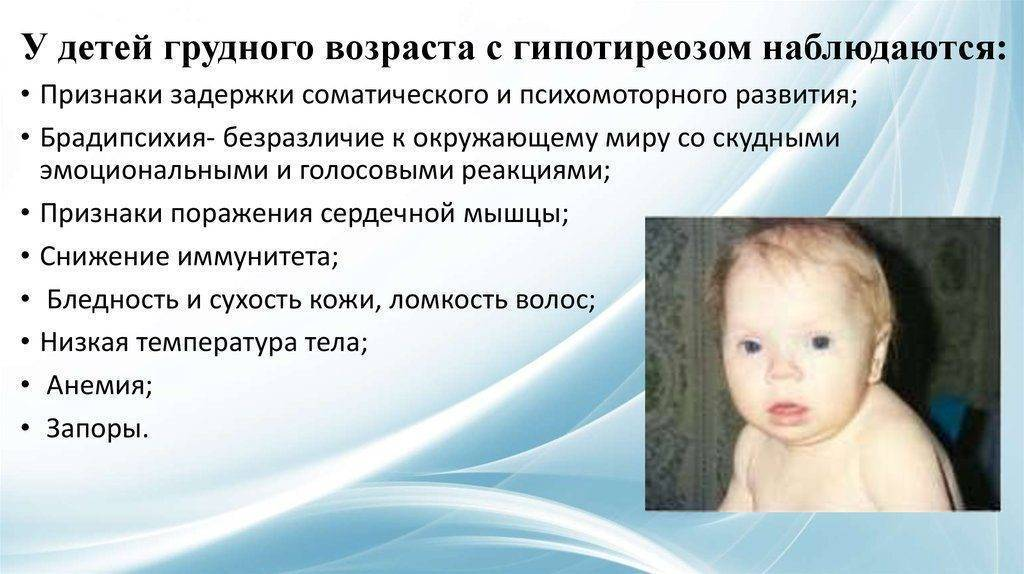 Гипотиреоз у детей (21 фото): симптомы и лечение, клинические рекомендации и особенности врожденной формы у новорожденных