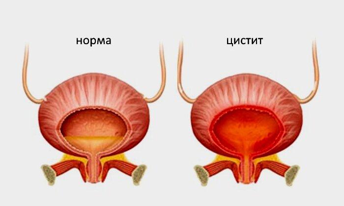 Воспаление мочевого пузыря в 4 года, лечение цистита у детей   prof-medstail.ru