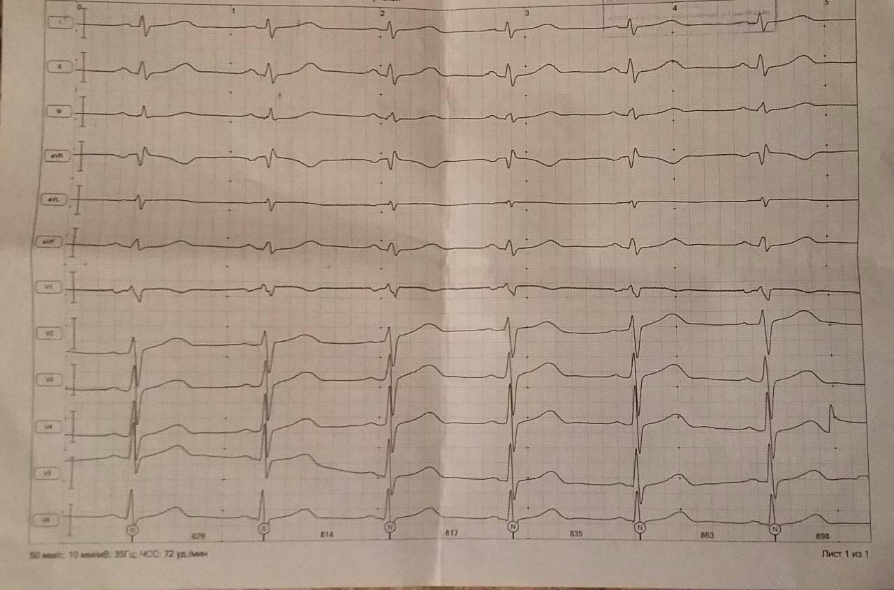 Частичное нарушение внутрижелудочковой проводимости что это такое — заболевания сердца