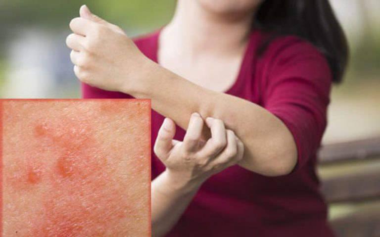 Первые признаки чесотки – симптомы, фото, у детей, ребенка, чесоточный клещ, как проявляется