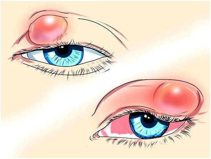 Фурункул на глазу лечение в домашних условиях. чирей на глазу: что делать и методы лечения