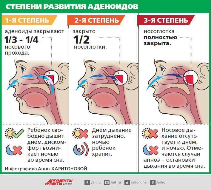 Удаление аденоидов у детей, в том числе лазером, под общим наркозом: показания и противопоказания, проведение операции, реабилитация и последствия