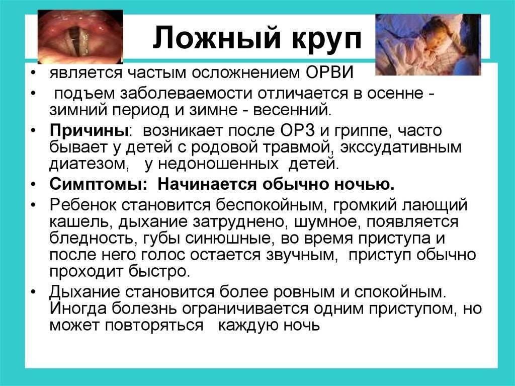 Ложный круп: симптомы и лечение у детей, правила первой неотложной помощи