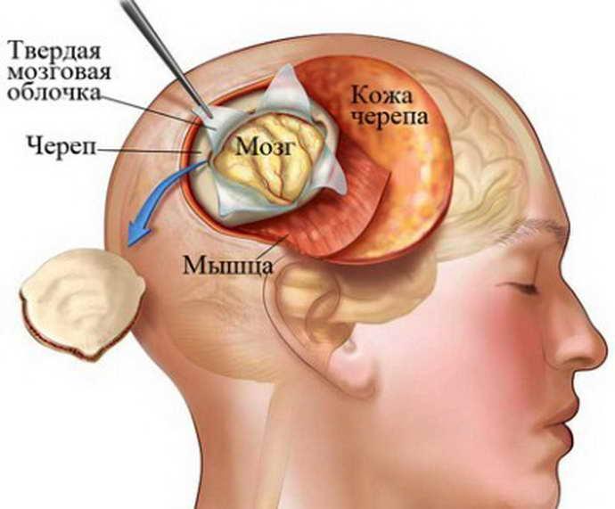 Шунтирование уха у детей кто делал