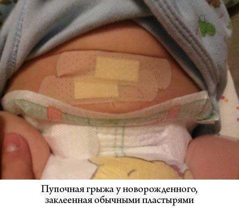 Как заклеить пупочную грыжу у новорожденных: виды пластырей, методика, медная монета