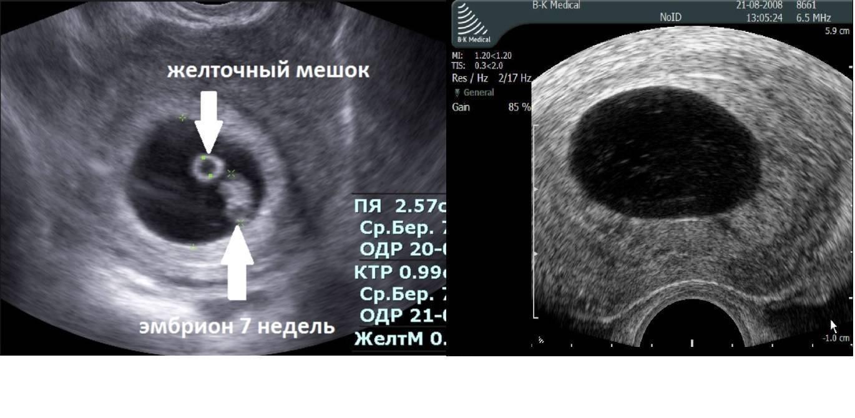 Анэмбриония: причины, симптомы, как долго с ней можно ходить, фото признаки