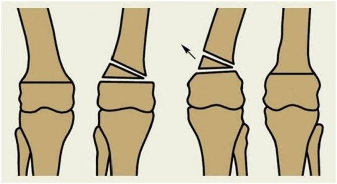 Вальгусная деформация коленных суставов у детей лечение лфк