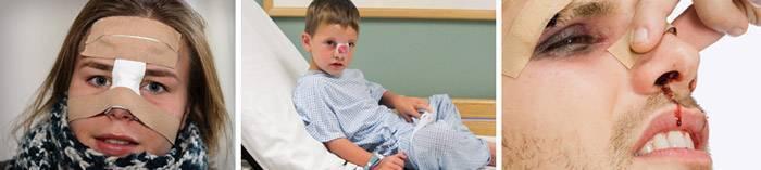 Перелом носа у ребенка: симптомы и признаки с фото, способы определения травмы | заболевания | vpolozhenii.com