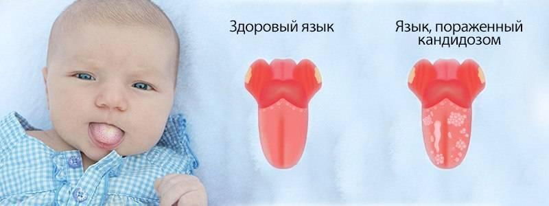 Молочница во рту у ребенка: чем лечить, симптомы и причины