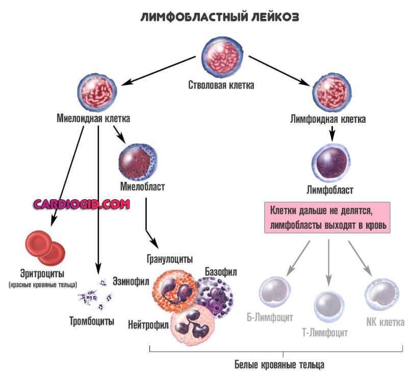 Лимфобластный лейкоз у детей