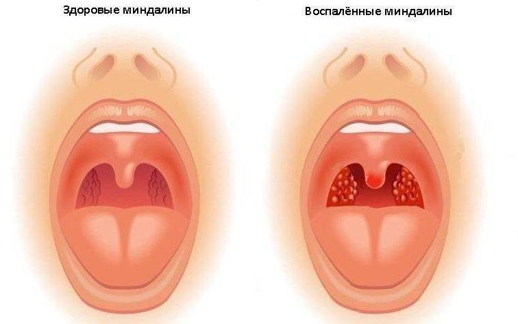 Фото как выглядит больное горло у ребенка — детишки и их проблемы
