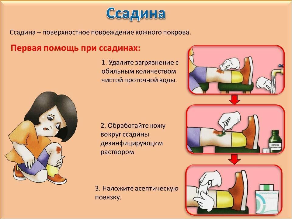 У ребенка болит ухо: что сделать в домашних условиях без лекарств. обезболивающее, если у ребенка болит ухо | жл