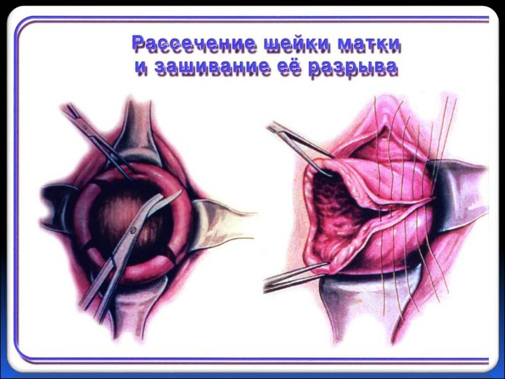 Влагалище после родов: изменения, восстановление, проблемы
