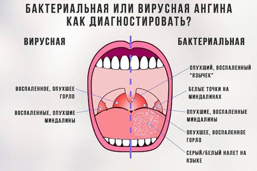 Как лечить белые гнойники в горле без температуры, фото
