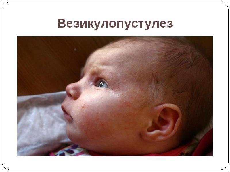 Везикулопустулез у новорожденных детей: этиология и лечение - ваш врач