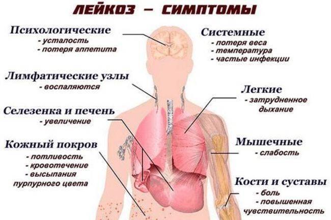 Причины и лечение лимфогранулематоза у детей