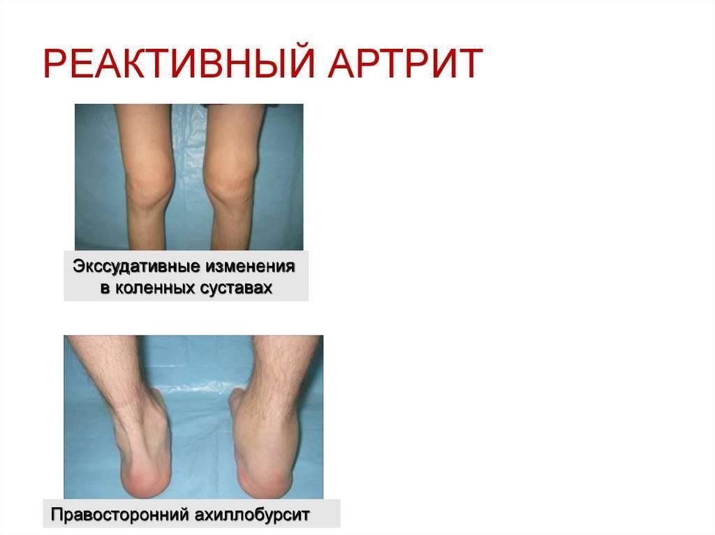 Реактивный артрит у детей симптомы и лечение