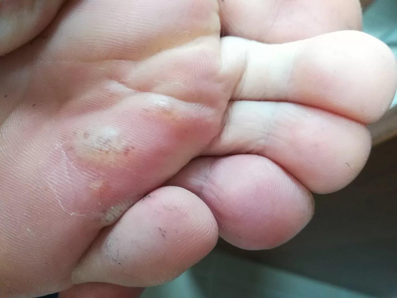 Волдыри на ногах и локтях у ребенка