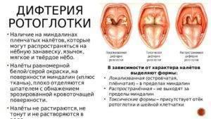 Белый налет в горле у ребенка (20 фото): белые точки и пятна, прыщики в горле, повышенная температура