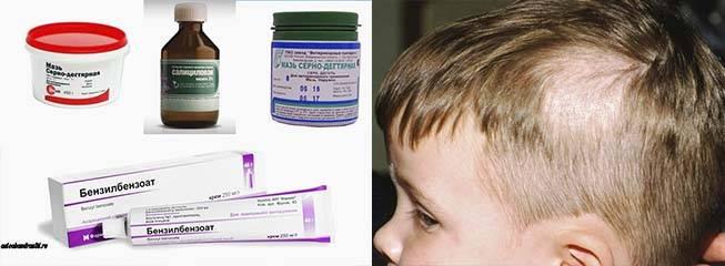 Стригущий лишай у ребенка: симптомы и лечение микроспории