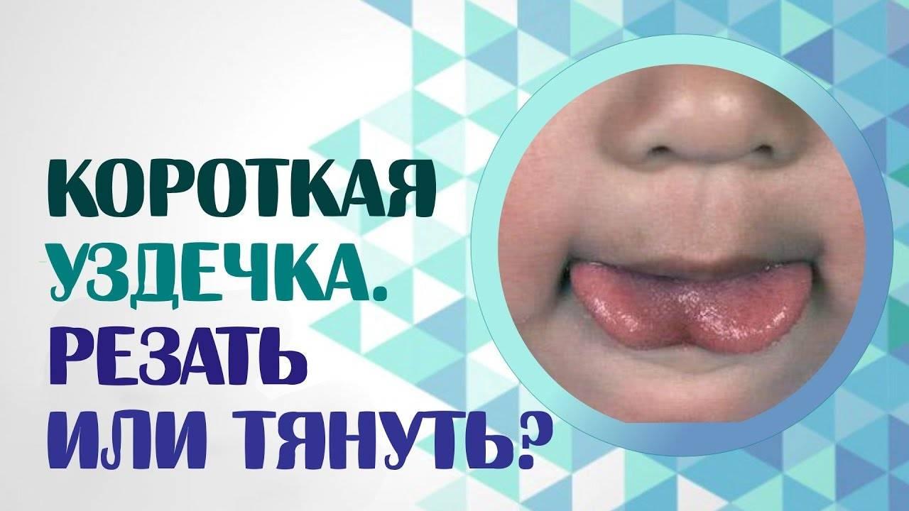 Короткая уздечка языка у ребенка: в каком возрасте подрезать, как определить комаровский фото