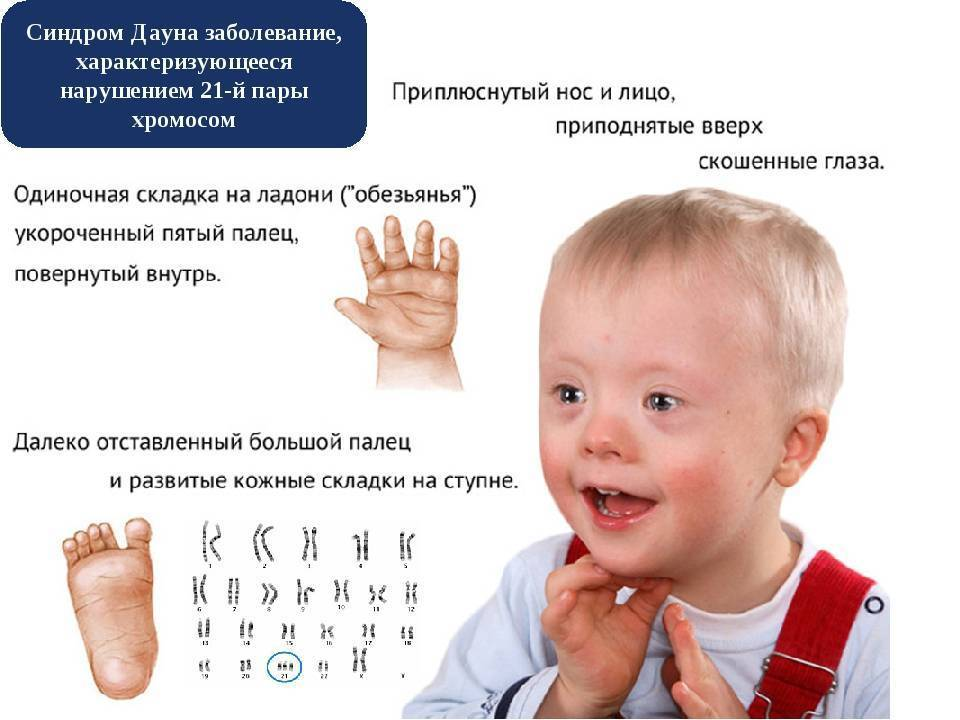 Синдром дауна: причины возникновения и признаки заболевания