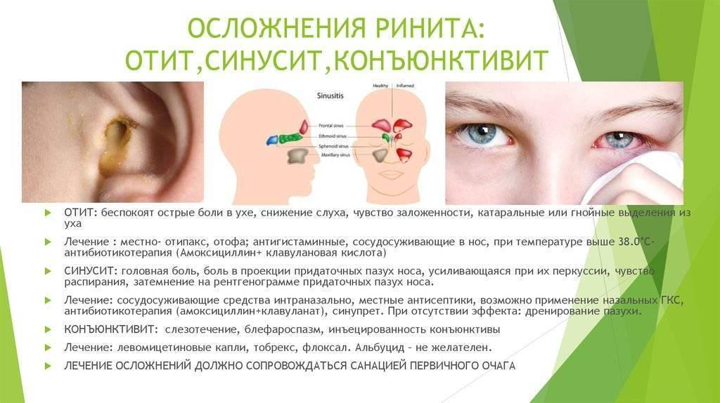 Развитие острого ринита у детей, способы его лечения, народная медицина